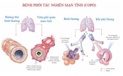 Dinh dưỡng ở bệnh nhận bệnh phổi tắc nghẽn mạn tính (COPD)