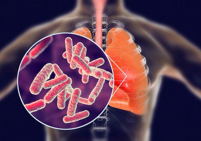 Lao phổi không phải là bệnh di truyền