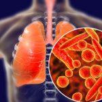 Triệu chứng lao phổi giai đoạn đầu: Cách nhận biết và điều trị