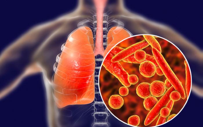 Lao phổi là bệnh lý nguy hiểm do vi khuẩn gây ra